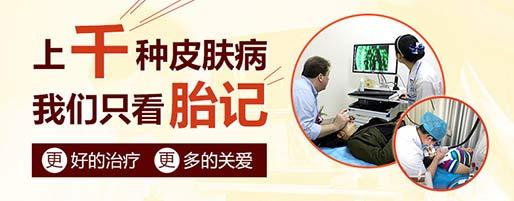 广州血管瘤专科在线咨询入口