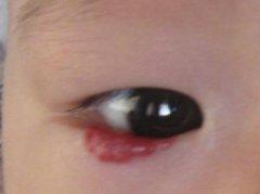 广州市有能治疗眼部海绵状血管瘤的医院吗