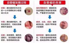 广州专科医院治疗血管瘤贵不贵