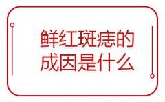 广州鲜红斑痣的成因有什么?鲜红斑痣的危害有多大?